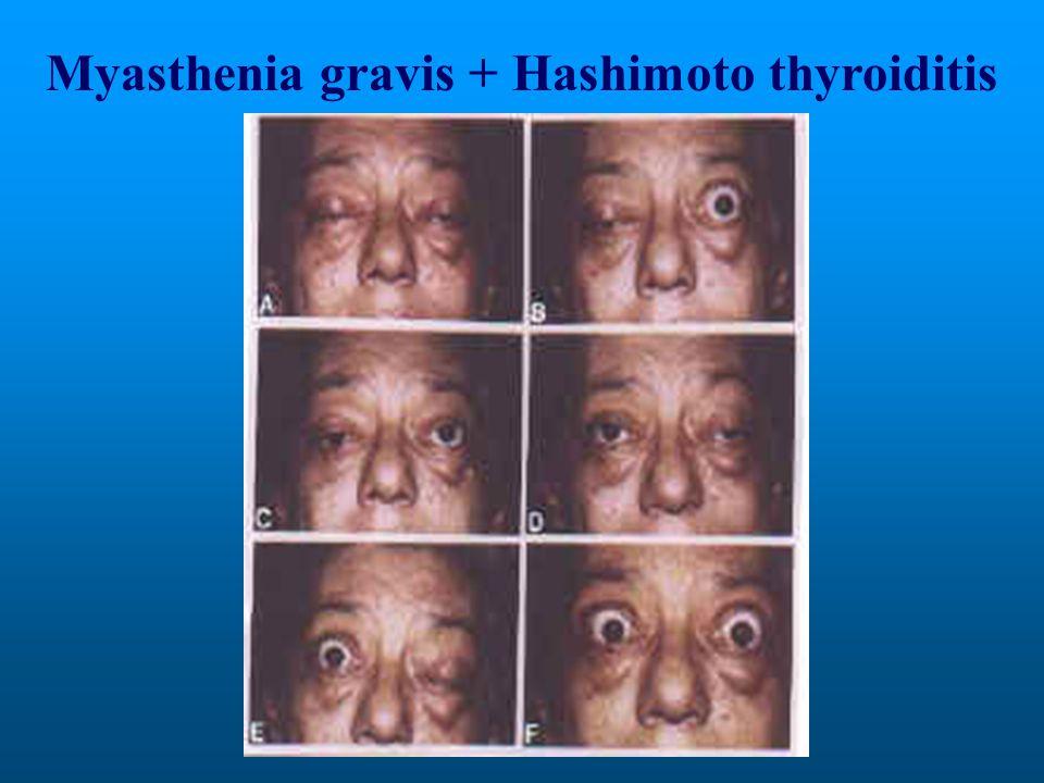 Myasthenia gravis + Hashimoto thyroiditis