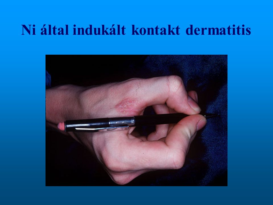 Ni által indukált kontakt dermatitis