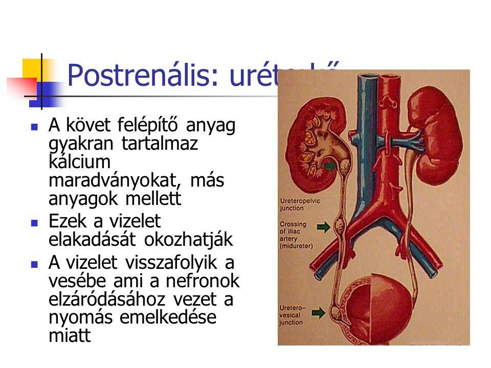 Postrenális: uréterkő