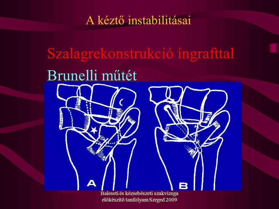 A kéztő instabilitásai