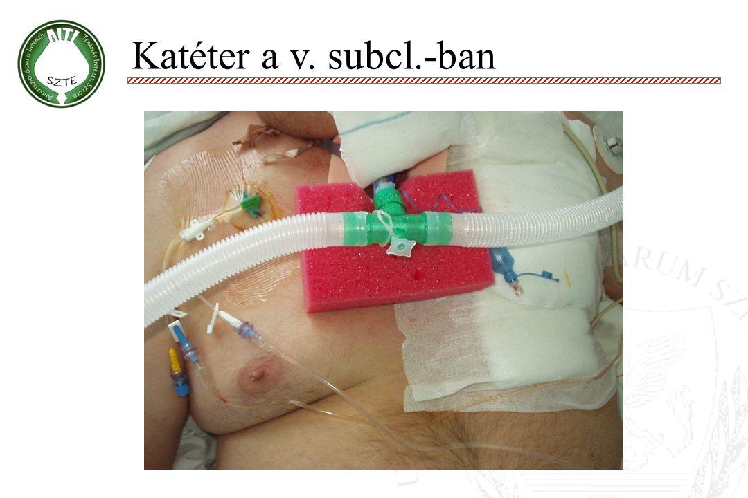 Katéter a v. subcl.-ban Molnár '99