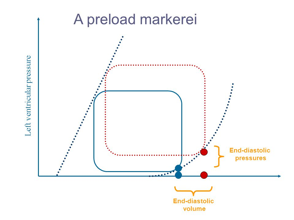 A preload markerei Left ventricular pressure End-diastolic pressures