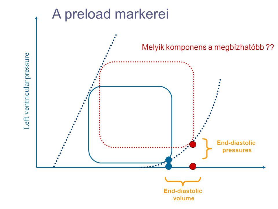 A preload markerei Melyik komponens a megbízhatóbb
