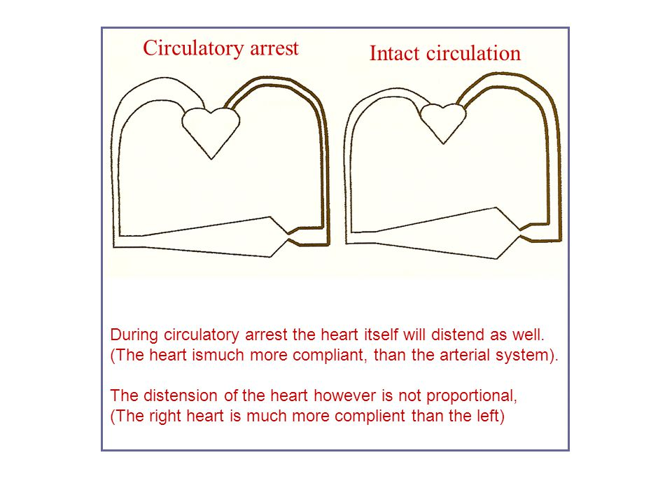 Circulatory arrest Intact circulation