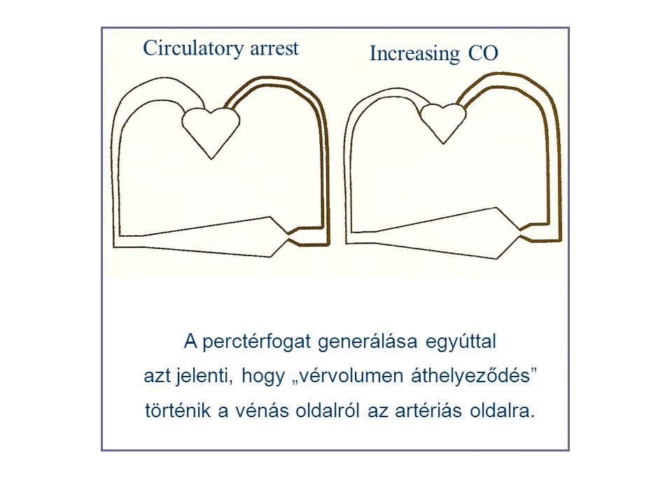 Circulatory arrest Increasing CO A perctérfogat generálása egyúttal