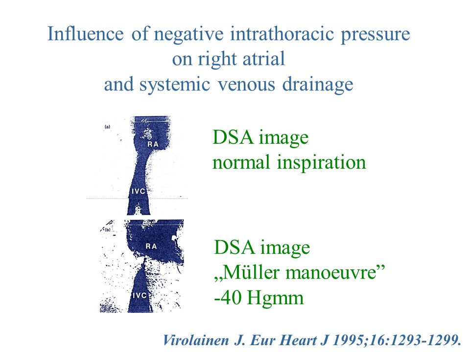Influence of negative intrathoracic pressure on right atrial
