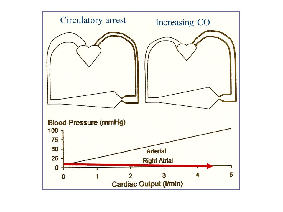 Circulatory arrest Increasing CO