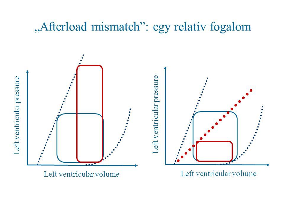"""""""Afterload mismatch : egy relatív fogalom"""