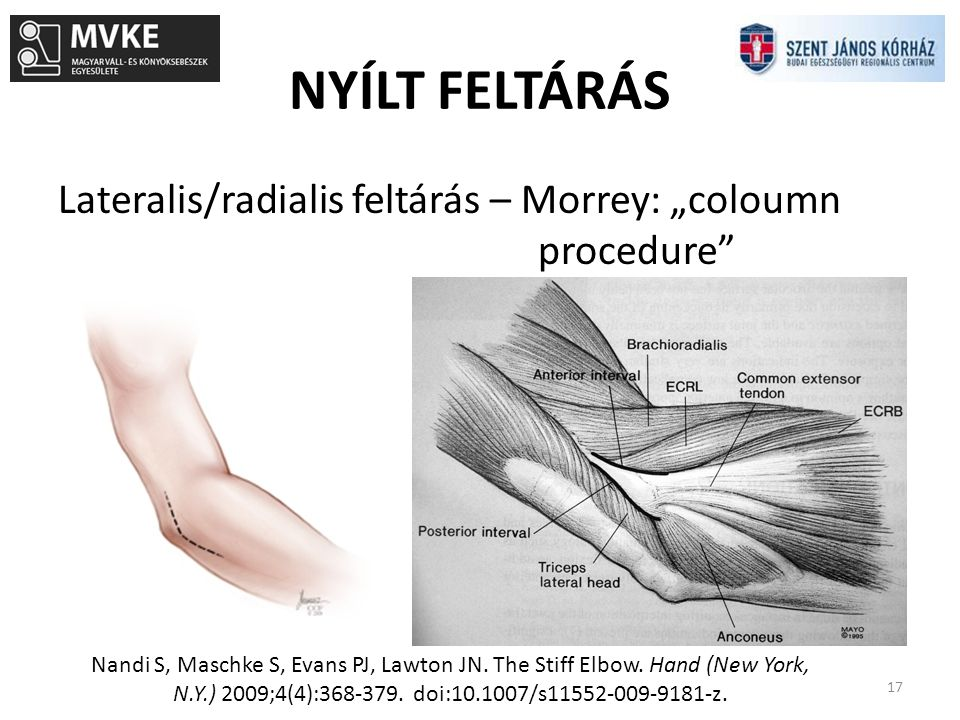 """NYÍLT FELTÁRÁS Lateralis/radialis feltárás – Morrey: """"coloumn procedure"""