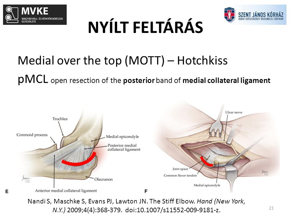 NYÍLT FELTÁRÁS Medial over the top (MOTT) – Hotchkiss pMCL open resection of the posterior band of medial collateral ligament