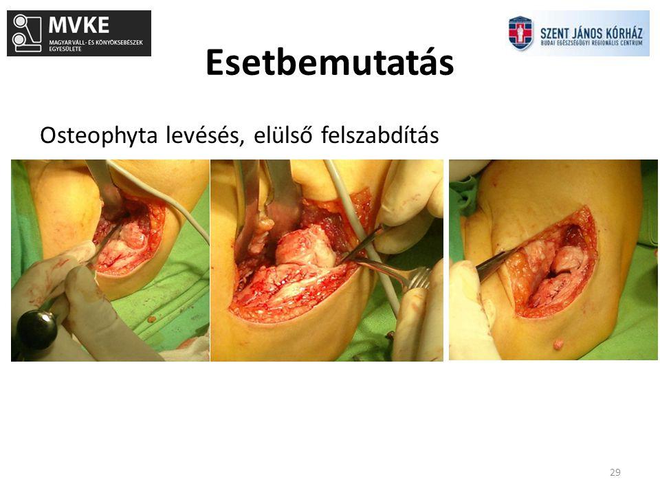 Esetbemutatás Osteophyta levésés, elülső felszabdítás