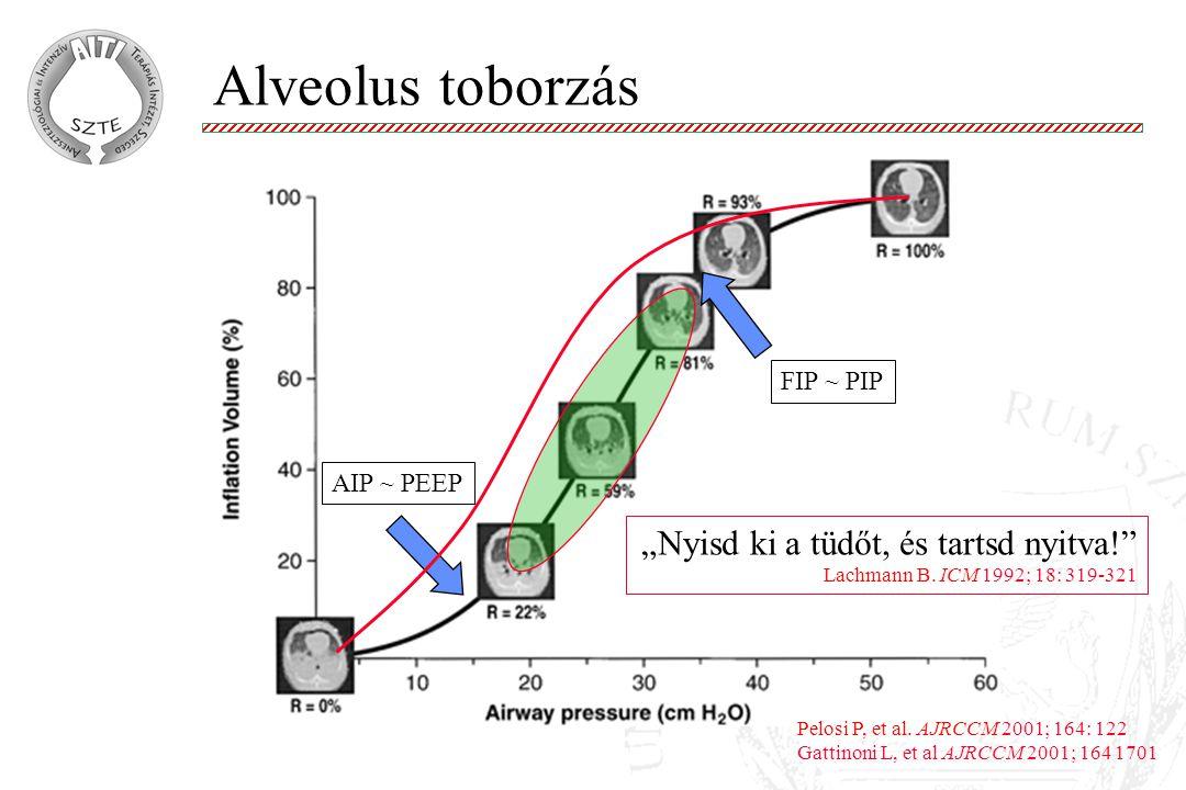 """Alveolus toborzás """"Nyisd ki a tüdőt, és tartsd nyitva! FIP ~ PIP"""