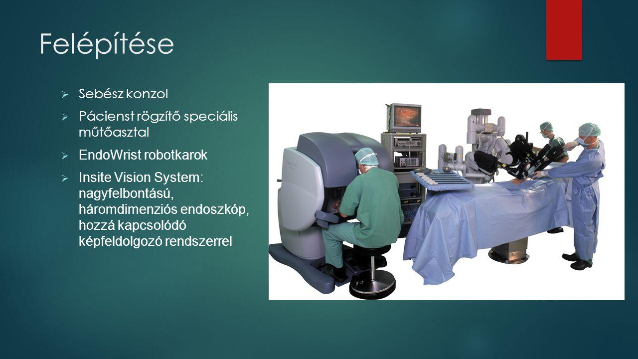 Felépítése Sebész konzol Pácienst rögzítő speciális műtőasztal
