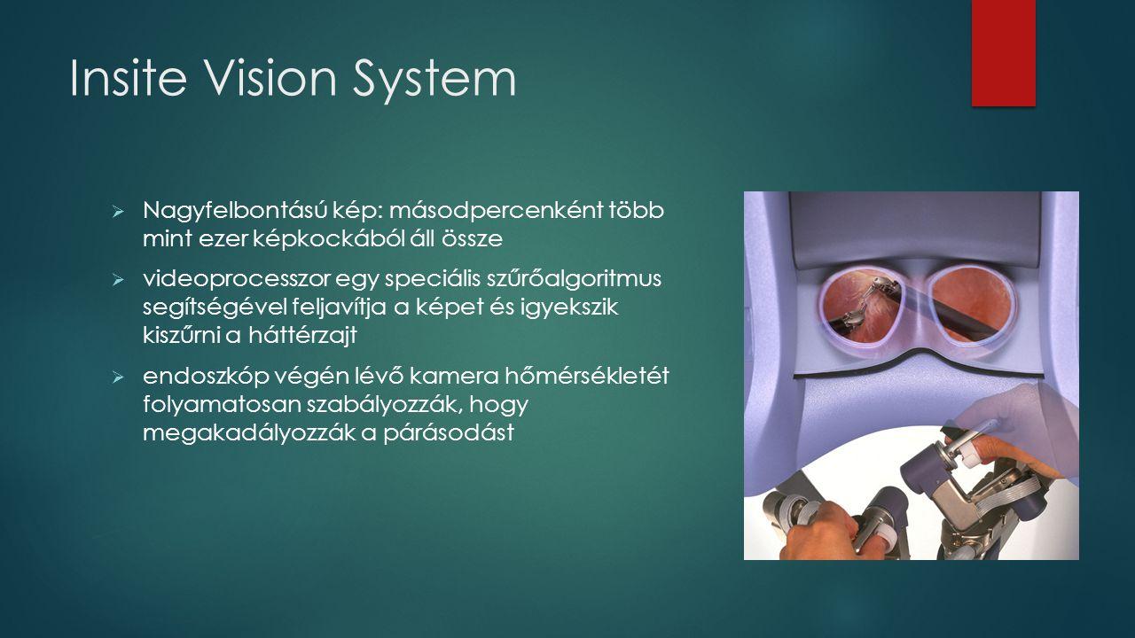 Insite Vision System Nagyfelbontású kép: másodpercenként több mint ezer képkockából áll össze.