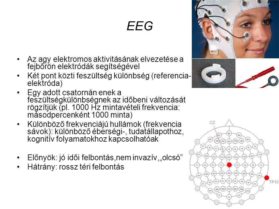 EEG Az agy elektromos aktivitásának elvezetése a fejbőrön elektródák segítségével. Két pont közti feszültség különbség (referencia-elektróda)