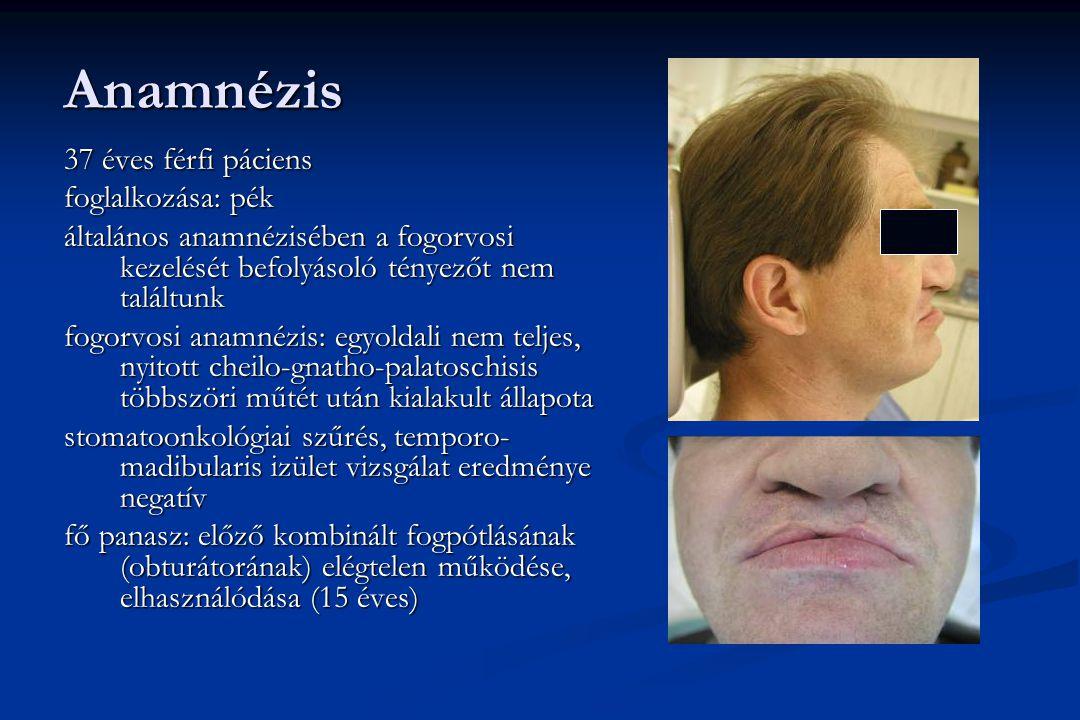 Anamnézis 37 éves férfi páciens foglalkozása: pék