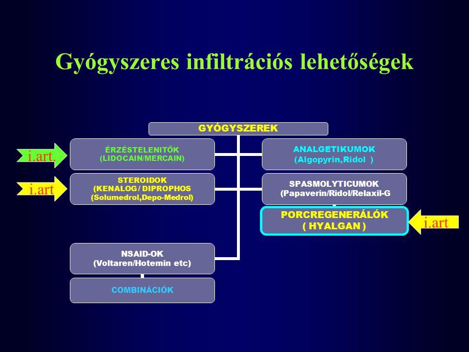 Gyógyszeres infiltrációs lehetőségek
