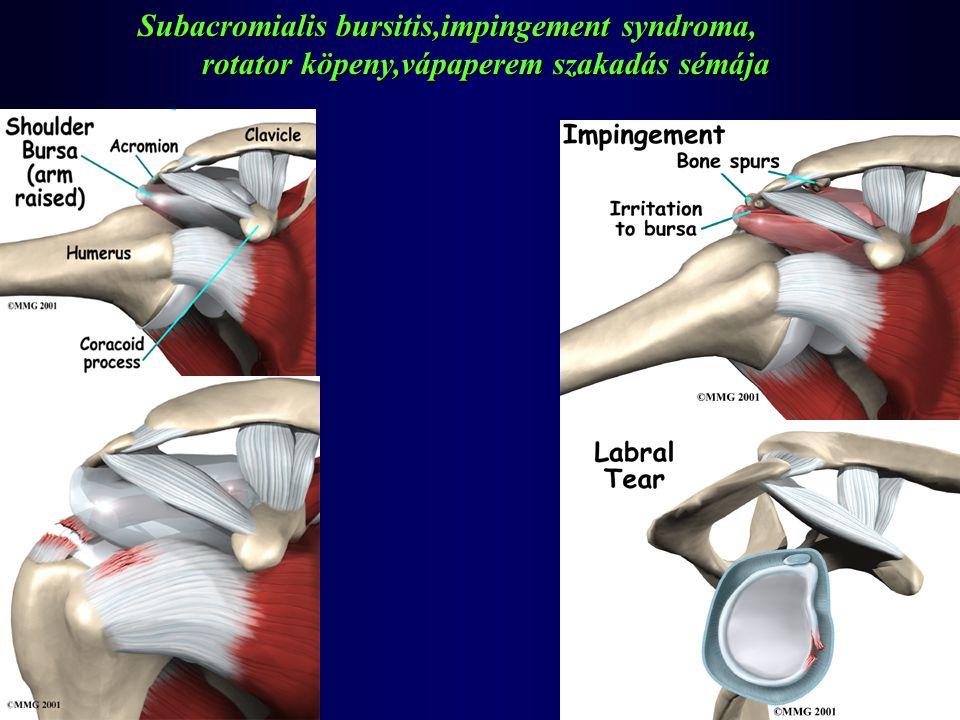 Subacromialis bursitis,impingement syndroma,