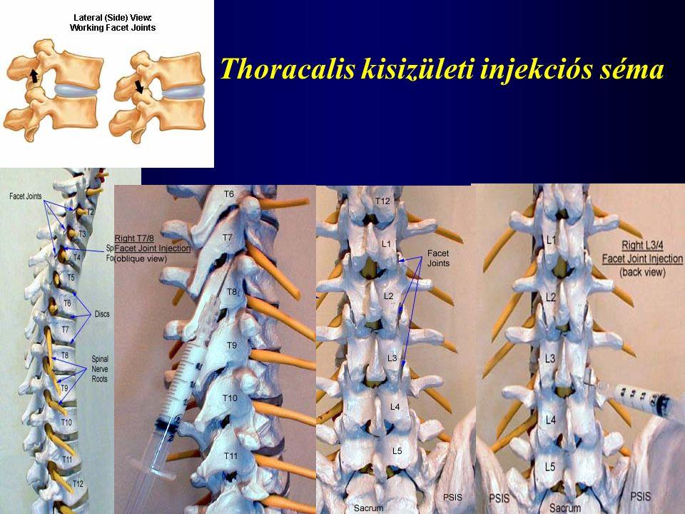 Thoracalis kisizületi injekciós séma