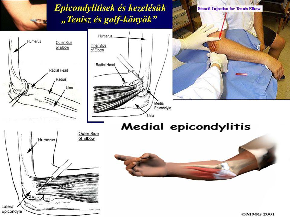 Epicondylitisek és kezelésük