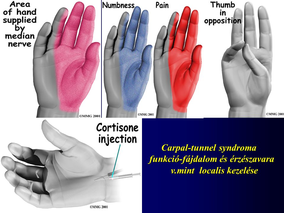 Carpal-tunnel syndroma