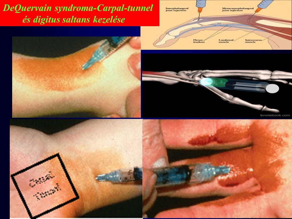 DeQuervain syndroma-Carpal-tunnel