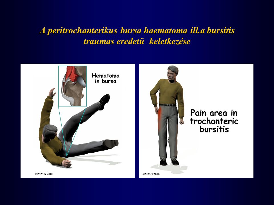 A peritrochanterikus bursa haematoma ill