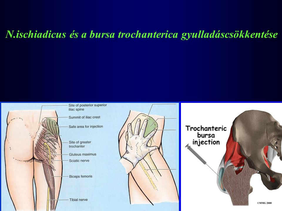 N.ischiadicus és a bursa trochanterica gyulladáscsökkentése