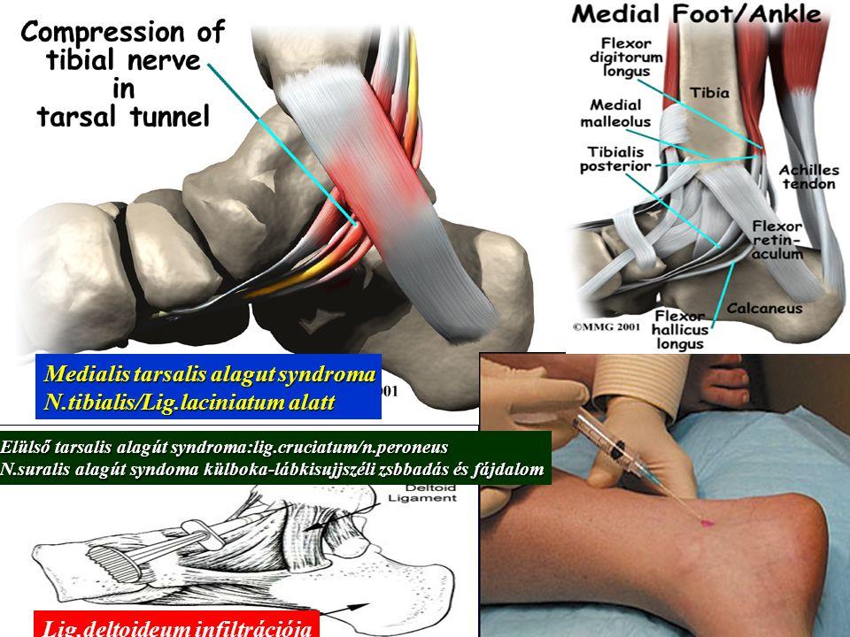 Medialis tarsalis alagut syndroma N.tibialis/Lig.laciniatum alatt
