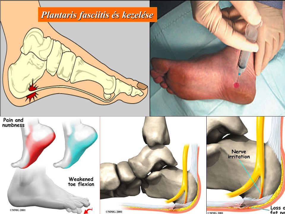 Plantaris fasciitis és kezelése