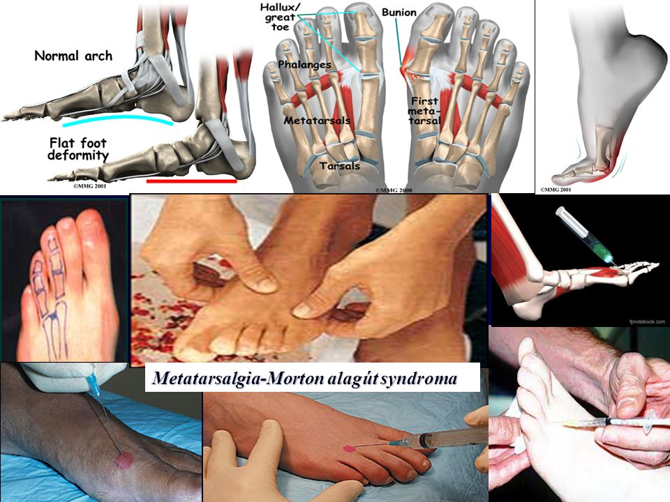 Metatarsalgia-Morton alagút syndroma