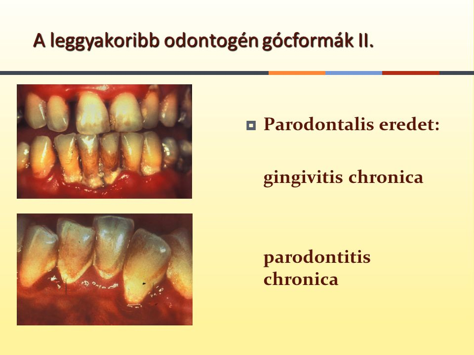 A leggyakoribb odontogén gócformák II.