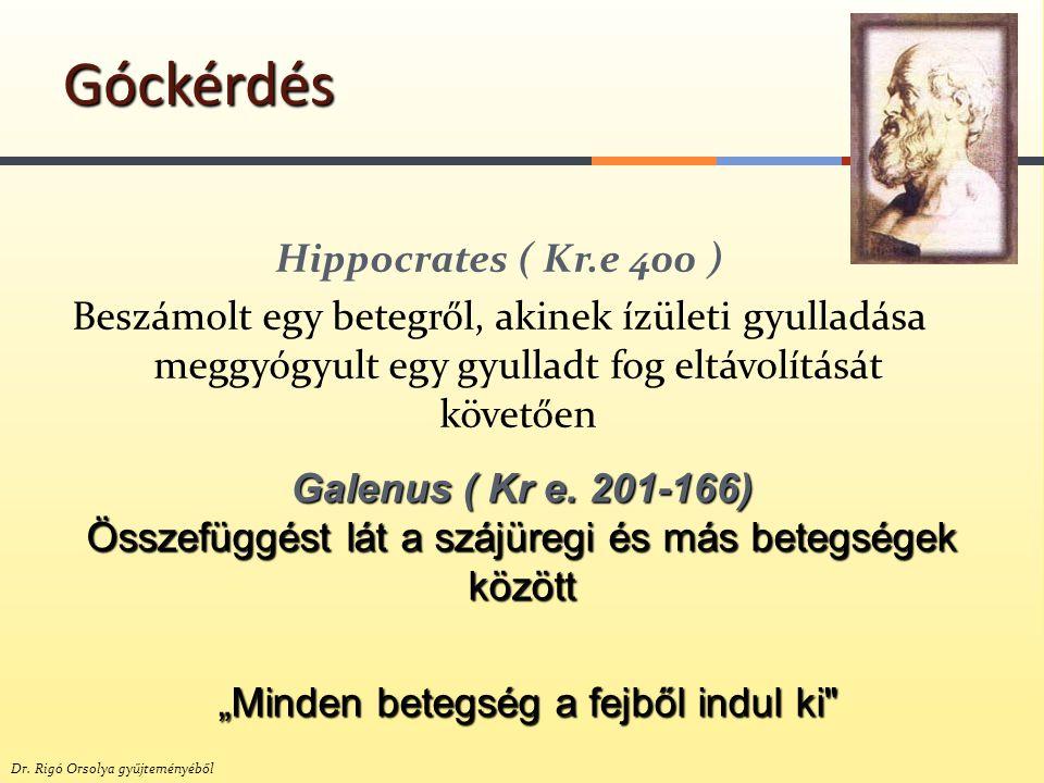 Góckérdés Hippocrates ( Kr.e 400 ) Beszámolt egy betegről, akinek ízületi gyulladása meggyógyult egy gyulladt fog eltávolítását követően
