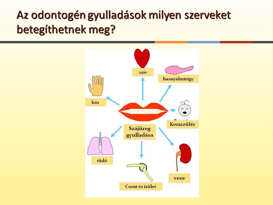 Az odontogén gyulladások milyen szerveket betegíthetnek meg