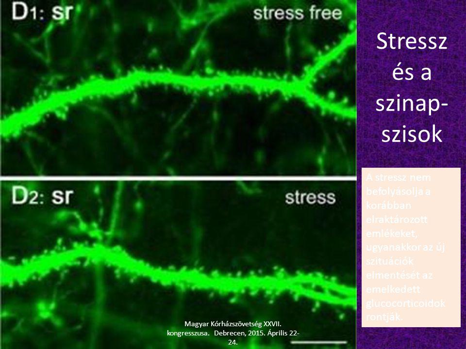 Stressz és a szinap-szisok
