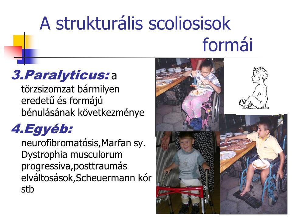 A strukturális scoliosisok formái