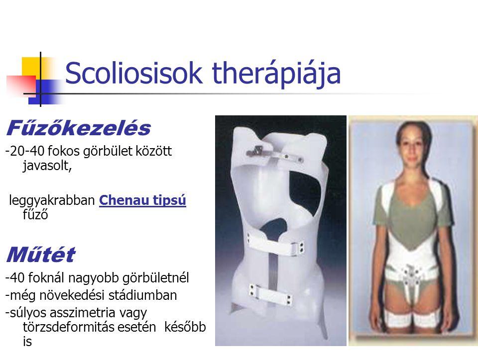Scoliosisok therápiája