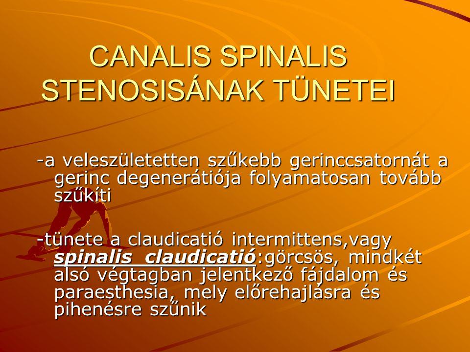 CANALIS SPINALIS STENOSISÁNAK TÜNETEI