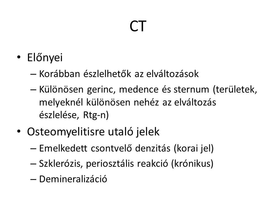 CT Előnyei Osteomyelitisre utaló jelek