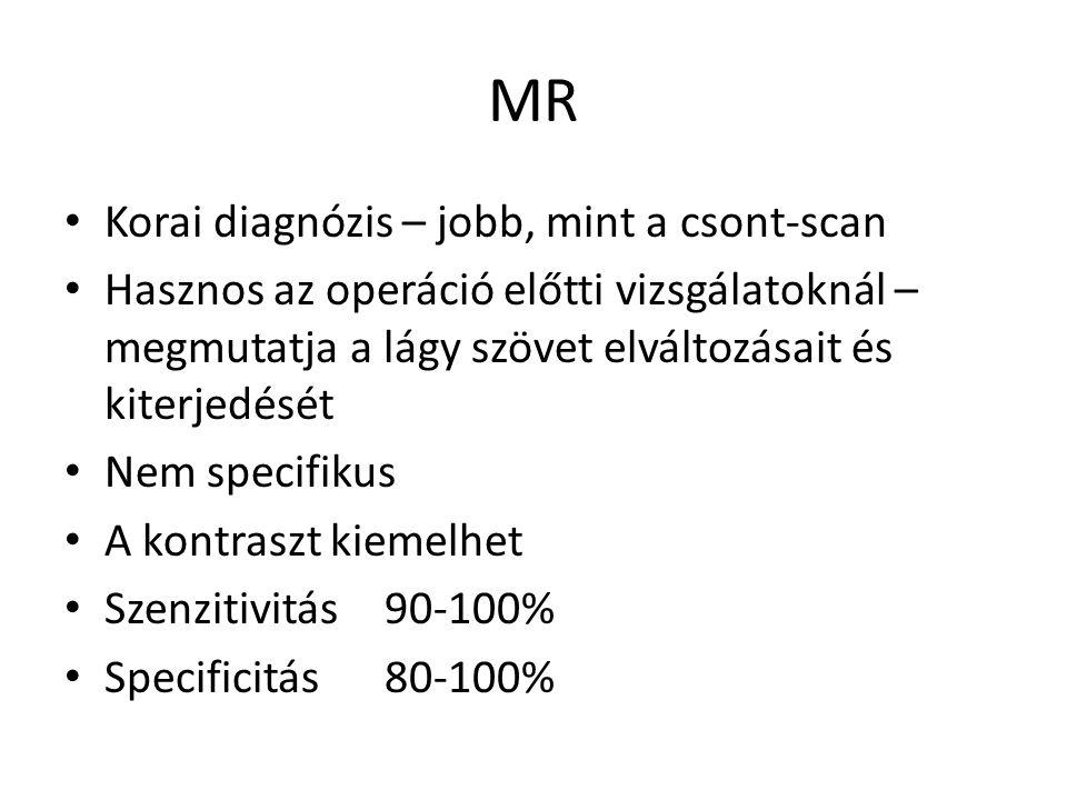 MR Korai diagnózis – jobb, mint a csont-scan