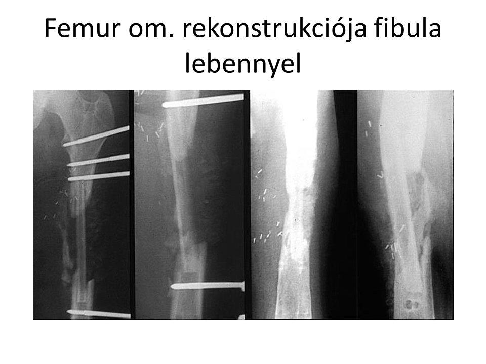 Femur om. rekonstrukciója fibula lebennyel