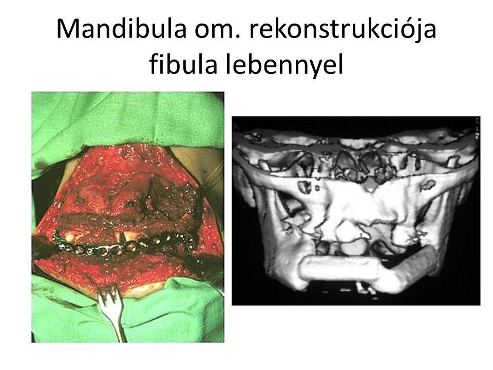 Mandibula om. rekonstrukciója fibula lebennyel