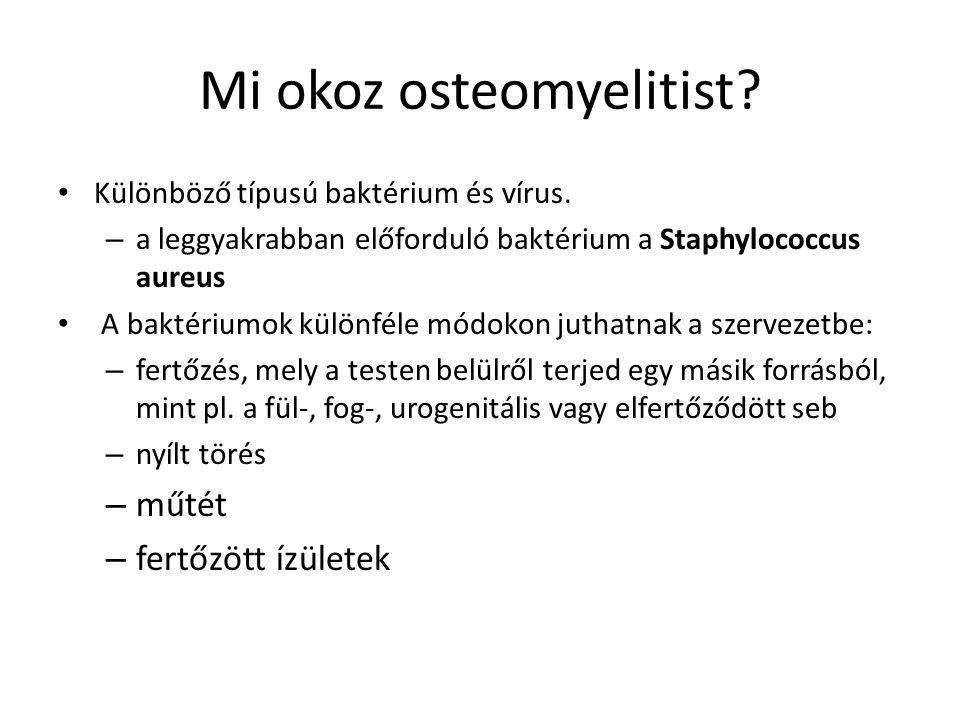 Mi okoz osteomyelitist