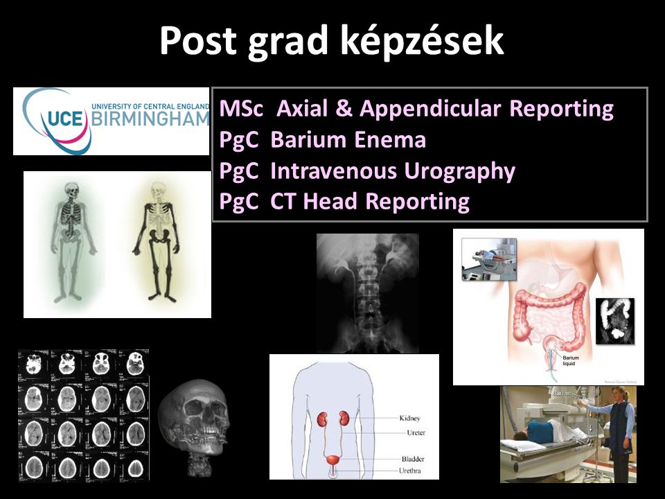 Post grad képzések MSc Axial & Appendicular Reporting PgC Barium Enema PgC Intravenous Urography PgC CT Head Reporting.