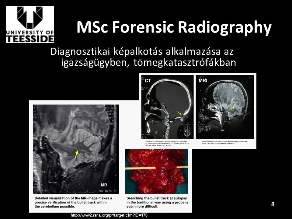 MSc Forensic Radiography