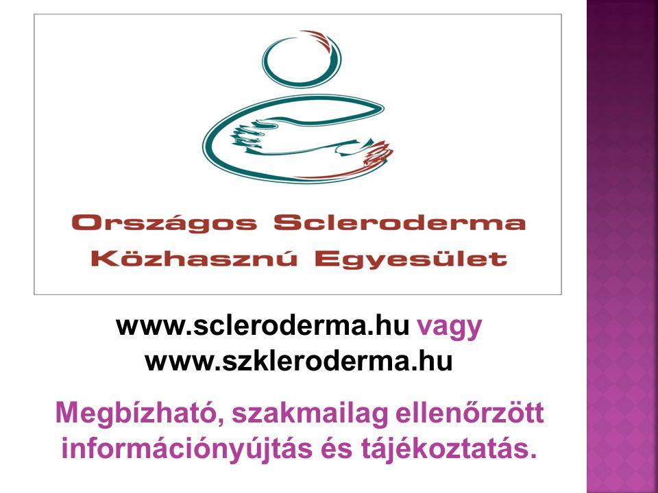 www.scleroderma.hu vagy www.szkleroderma.hu