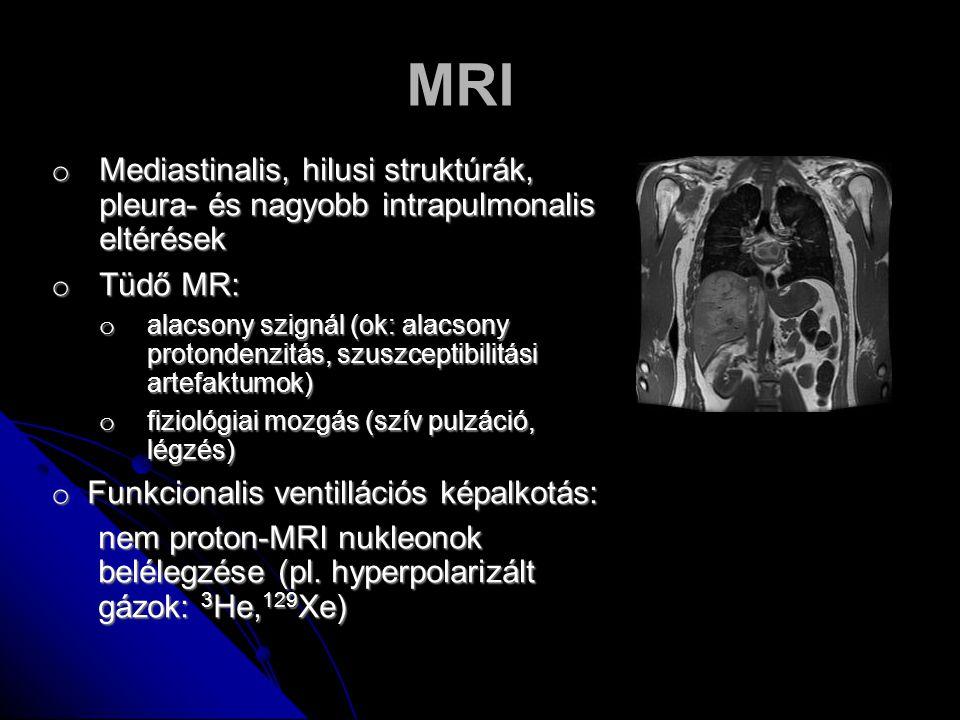 MRI Mediastinalis, hilusi struktúrák, pleura- és nagyobb intrapulmonalis eltérések. Tüdő MR: