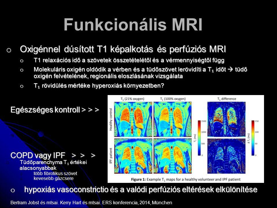 Funkcionális MRI Oxigénnel dúsított T1 képalkotás és perfúziós MRI