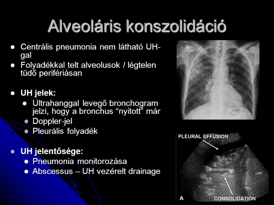 Alveoláris konszolidáció