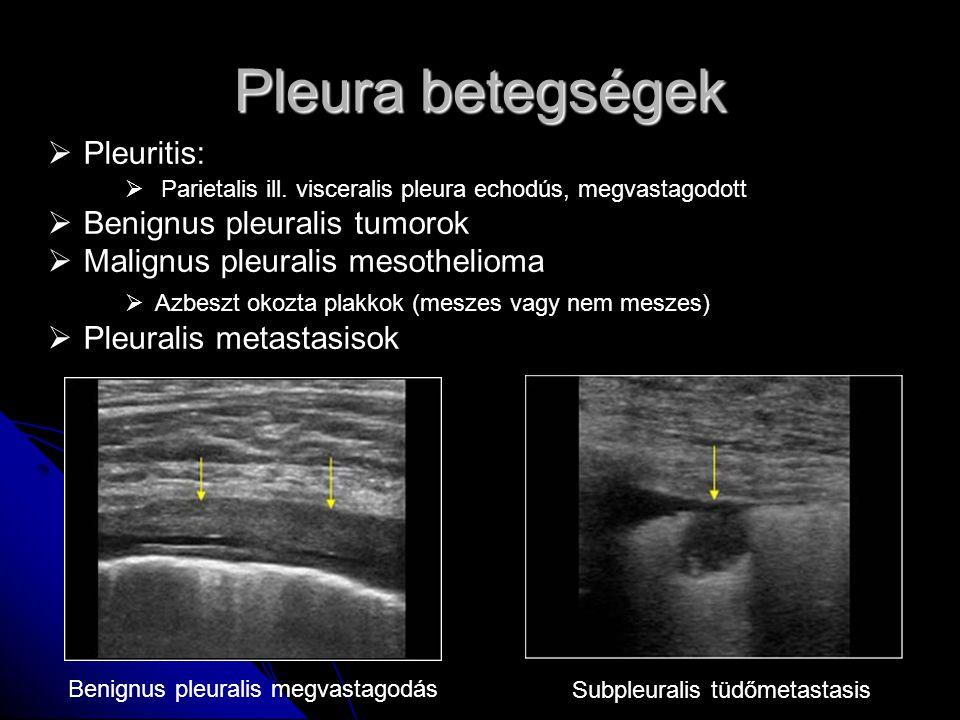 Pleura betegségek Pleuritis: Benignus pleuralis tumorok